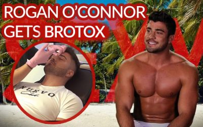 Rogan O'Connor – Ex On The Beach Celeb Gets Brotox