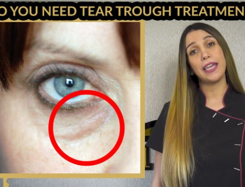 Do You Need Tear Trough Treatment? | It Is Not Right For Everyone