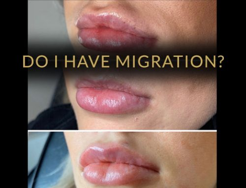 Has My Lip Filler Migrated? Are My Lips Normal?