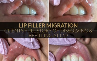 Client Tells Her Full Story Of Dissolving and Refilling Lips – L1P Aesthetics