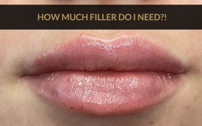 How Much Lip Filler Do I Need? By Dr Ranjbar