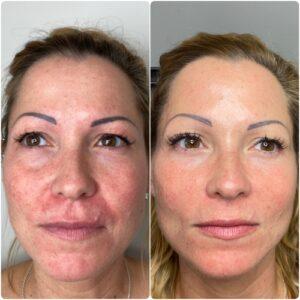 Profhilo face skin
